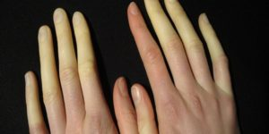 raynauds-phenomena_267_article_66018