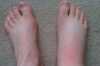 foot-swelling